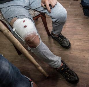 Пострадавший после штурма дома бывшего президента Алмазбека Атамбаева в селе Кой-Таш