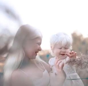 Рождение двух или больше детей с этой особенностью в одной семье — крайне редкое событие, потому как на 20 тысяч младенцев приходится всего один альбинос.