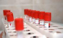 Пробирки с кровью для анализа. Архивное фото