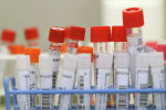 Тесты на коронавирусную инфекцию (COVID-19). Архивное фото