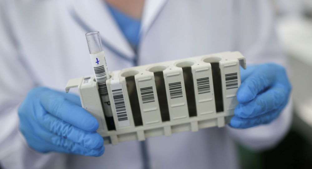 Сотрудник лаборатории проводит пробный тест на коронавирусную болезнь (COVID-19). Архивное фото