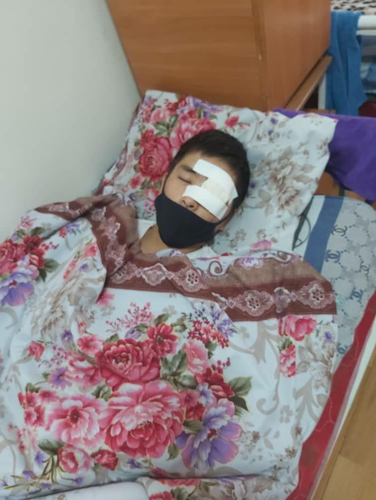 Потерявший во время митингов глаз Нурлан уулу Уларбек в №4 городской больнице в Бишкеке