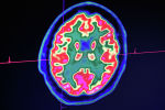 Снимок мозга человека. Архивное фото