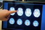 Врач указывает на активность мозга пациента в больнице. Архивное фото