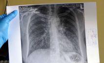 Снимок легкий пациента. Архивное фото