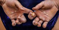 Гимнастка держится за пальцы. Архивное фото