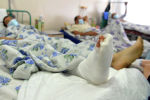 Пострадавший с конфликта на границе, получающих лечение в БНИЦТО в Бишкеке