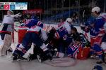 Пользователи обрушились с гневом на нападающего канадского клуба Вашингтон Кэпиталс Тома Уилсона, затеявшего драку в ходе игры против команды Нью-Йорк Рейнджерс в рамках НХЛ.