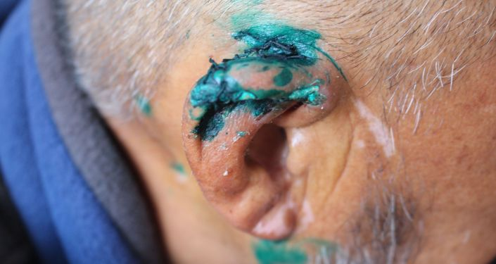 Синяки и ушиби на теле кыргызстанца побывавшего в заложниках на территории Таджикистана