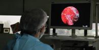 Врач выполняет расширенную функциональную эндоскопическую операцию на человеке с мукормикозом. Архивное фото