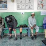 Бойцы движения Талибан примеряют новые протезы в Реабилитационном центре Международного комитета Красного Креста в Кабуле