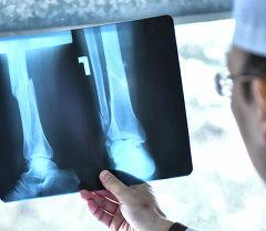 Врач смотрит рентген снимок перелома костей. Архивное фото
