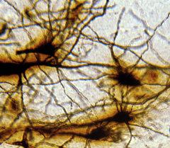 Мээнин нейрондук түзүлүшү. Архив