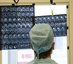 Микро-нейрохирург мээнин сүрөтүн карап атат. Архив