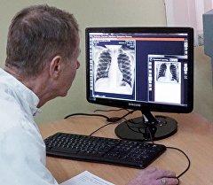 Дарыгер өпкөнүн рентген сүрөтүн көрүүдө. Архив