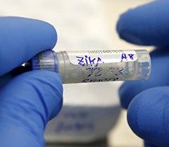 Сотрудник лаборатории проводит анализ на наличие вируса зика. Архивное фото