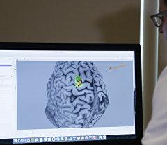 Снимок мозга на мониторе