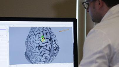 Ученый смотрит на снимок мозга на мониторе. Архивное фото
