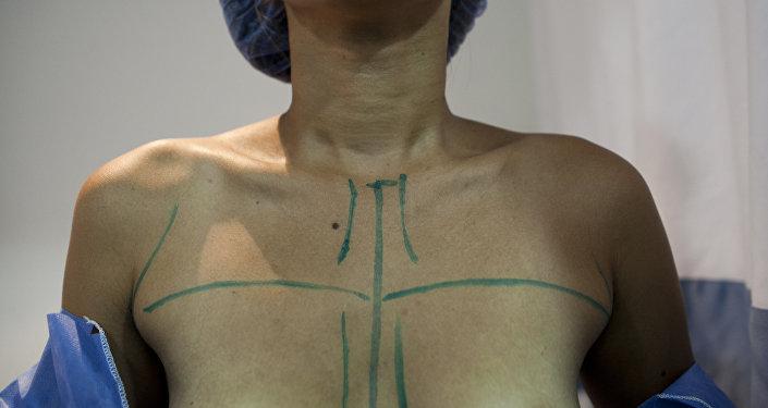 Девушка перед операцией на груди. Архивное фото