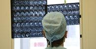 Врач смотрит на рентген снимки мозга пациента. Архивное фото