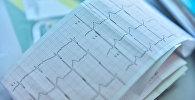 Кардиограмма сердечного ритма в больнице в Бишкеке. Архивное фото