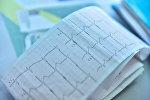 Кардиограмма сердечного ритма. Архивное фото