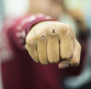 Мужчина с разбитым кулаком