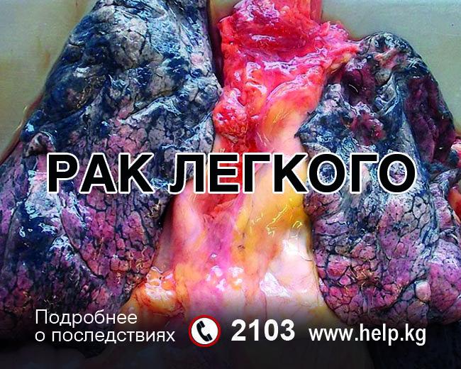 Устрашающая картинка, которая появится на сигаретных пачках продукций КР