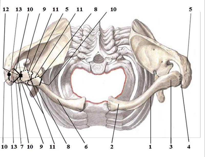 Функциональный остеосинтез при перелома-вывихе акромиального конца ключицы от Бекназара Жунусова