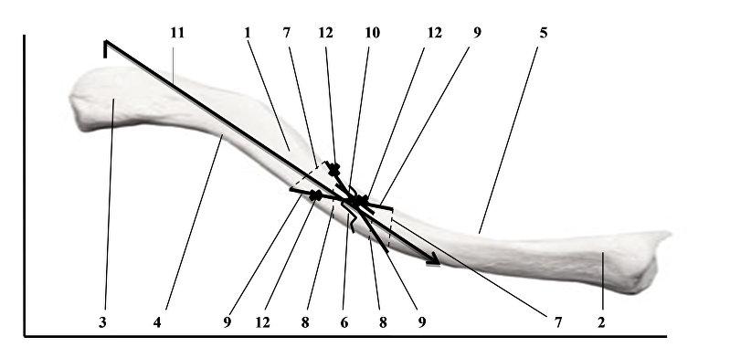 Функциональный остеосинтез при оскольчатом переломе диафиза ключицы, разработанный Бекназаром Жунусовым
