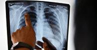 Дарыгер кургак учук менен ооруган адамдын өпкөсүнүн рентген сүрөтүн карап жатат. Архив