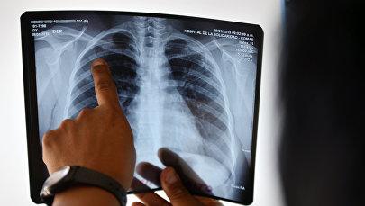 Өпкөнүн рентген сүрөтүн карап жаткан дарыгер. Архив