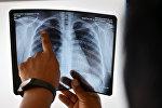 Врач смотрит рентген снимок легкого больного туберкулезом. Архивное фото