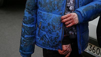 Мужчина в окровавленной куртке. Архивное фото