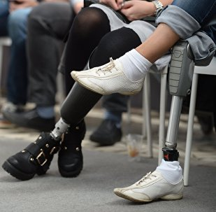 Девушка с протезом ног. Архивное фото