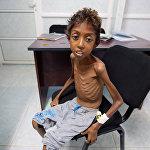 Гуманитарный кризис в Йемене