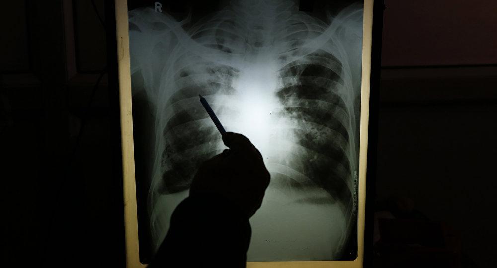Медициналык кызматкер чыдамкайдын өпкөсүнүн рентген сүрөтүн карап жаткан убакытта. Архив