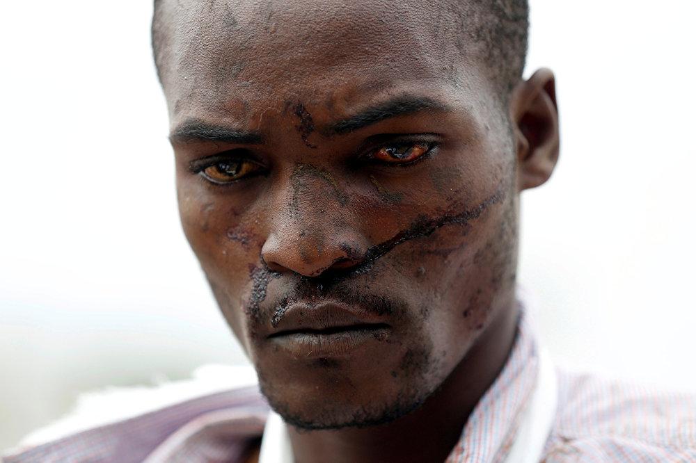 Столкновения с сотрудниками полиции в Кении