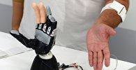 Бионический протез. Архивное фото