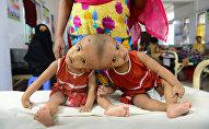 Сиамские близнецы Рабия и Рукия сидят в больнице в Дакке. 25 июля 2017 года