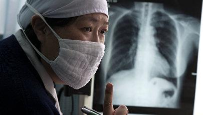 Врач смотрит рентген легких. Архивное фото