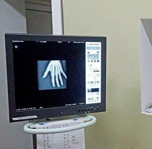 Рентгенге түшүү. Архивдик сүрөт