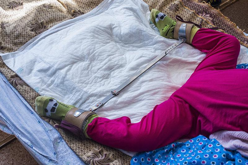Ребенок с шиной Виленского в национальном центре охраны материнства и детства в Бишкеке