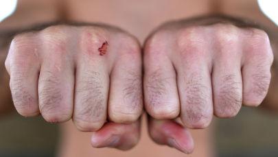 Боец с кулаком. Архивное фото