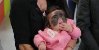 Полугодовалая Луна Феннер родилась с большим родимым пятном на лице. Ее диагноз меланоцитарный невус сейчас не опасен, но в будущем может перерасти в крайне агрессивную форму рака — меланому.