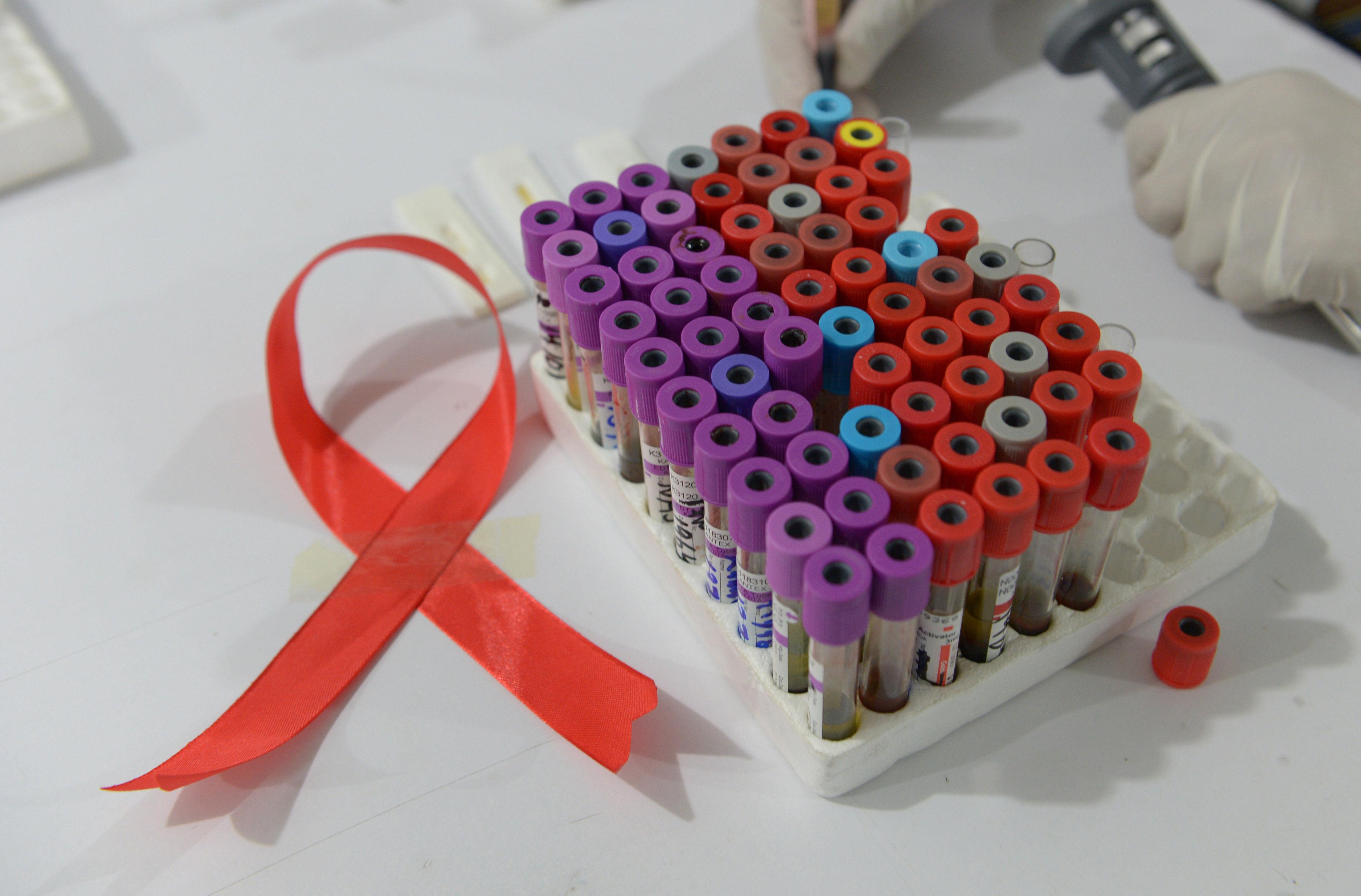 Сотрудник лаборатории берет анализы на ВИЧ в больнице Исламабада. 30 ноября 2013 год