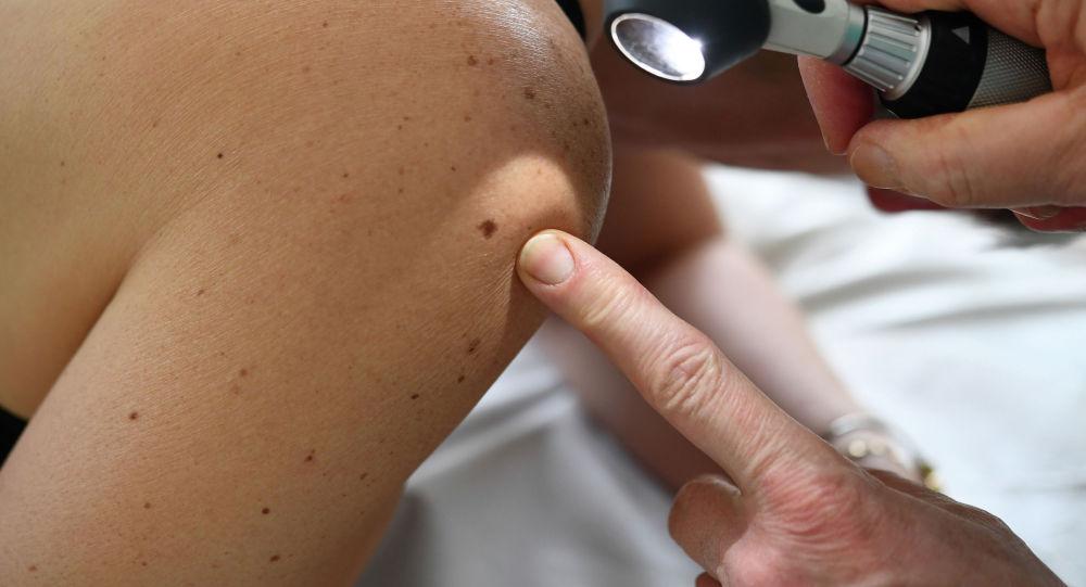 Меңди караган дерматолог. Архивдик сүрөт
