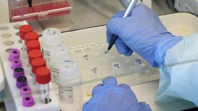 Лабораториянын ишкери коронавируска тест кылып жаткан учурунда. Архив