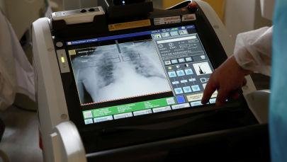 Медициналык кызматкер бейтаптын өпкөсүн рентген кылып жатат. Архив