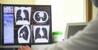 Ооруканадагы компьютердик томография кабинети. Архив